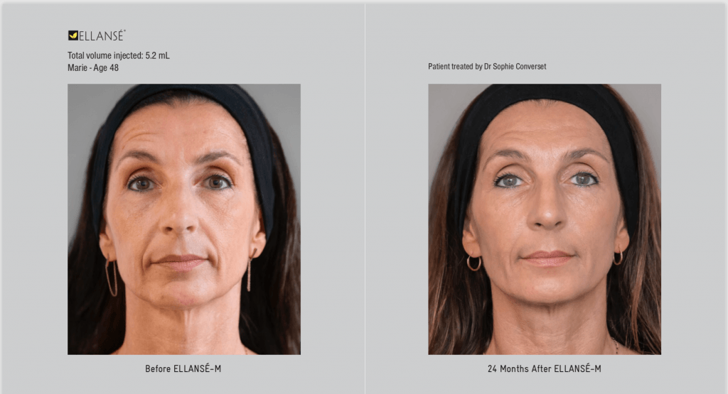 Before and after Ellanse treatment