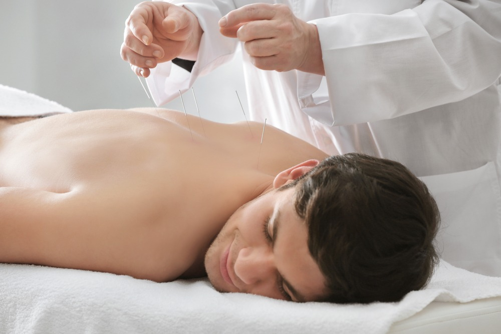 Acupuncture treatment in Middlewich, Cheshire