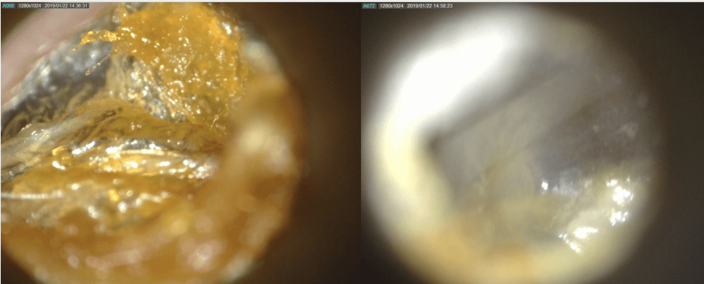 earwax removal Cheshire
