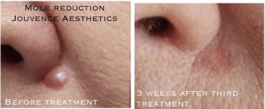 mole reduction cheshire