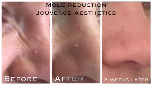 mole removal cheshire