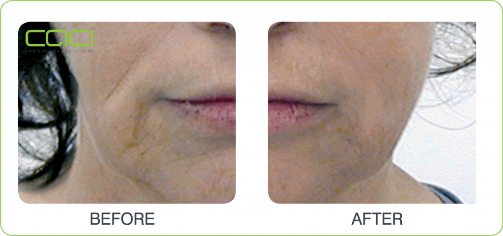 before and after CACI Non Surgical Facelift Jowl Lift Middlewich Cheshire