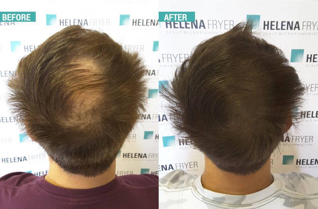 scalp micropigmentation cheshire
