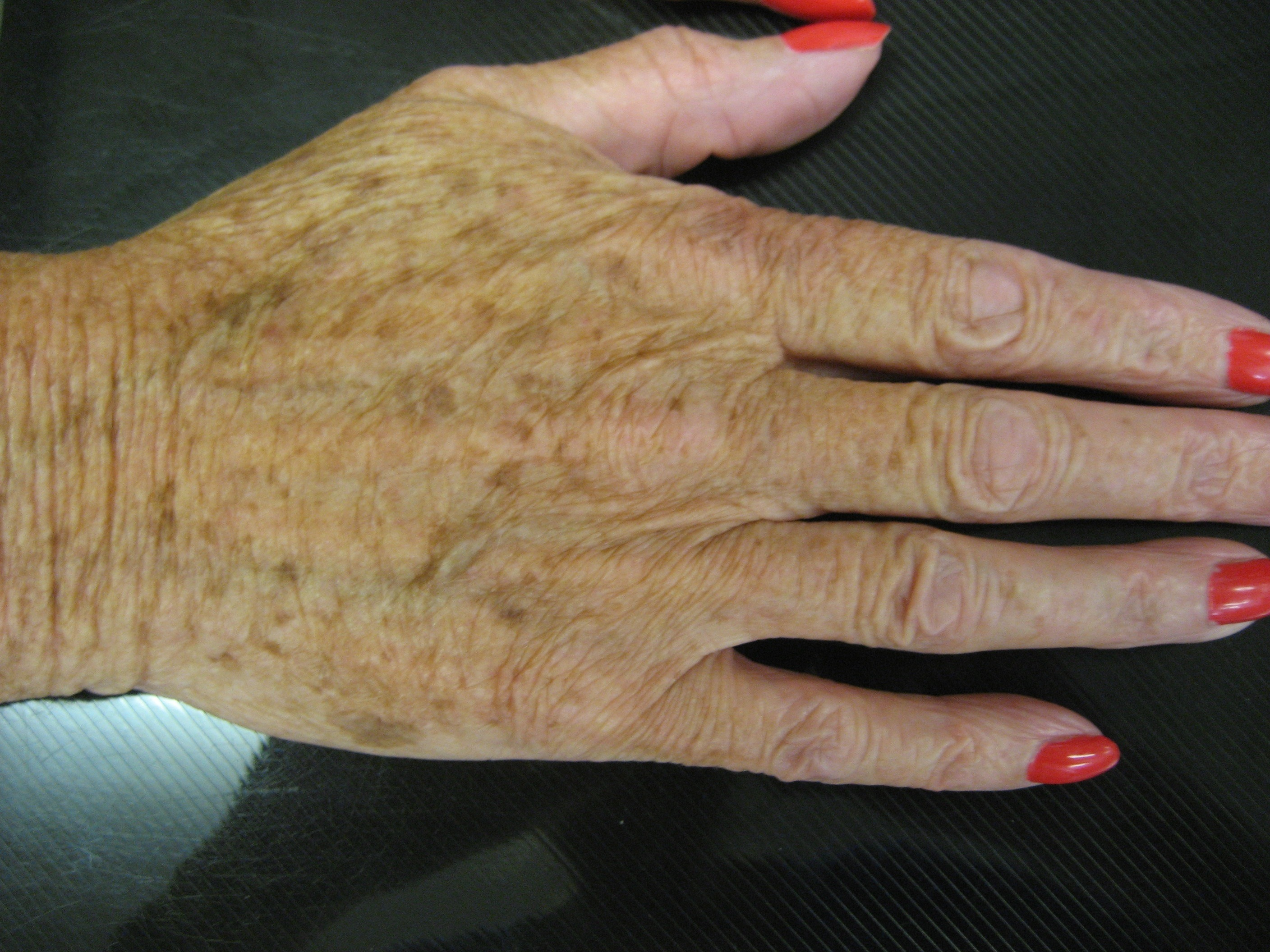 Radiesse Hand Rejuvenation by Dr Teri at Cheshire Lasers