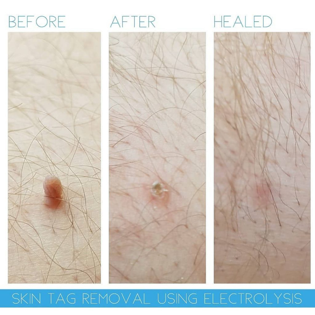 Helena Fryer Skin tag removal