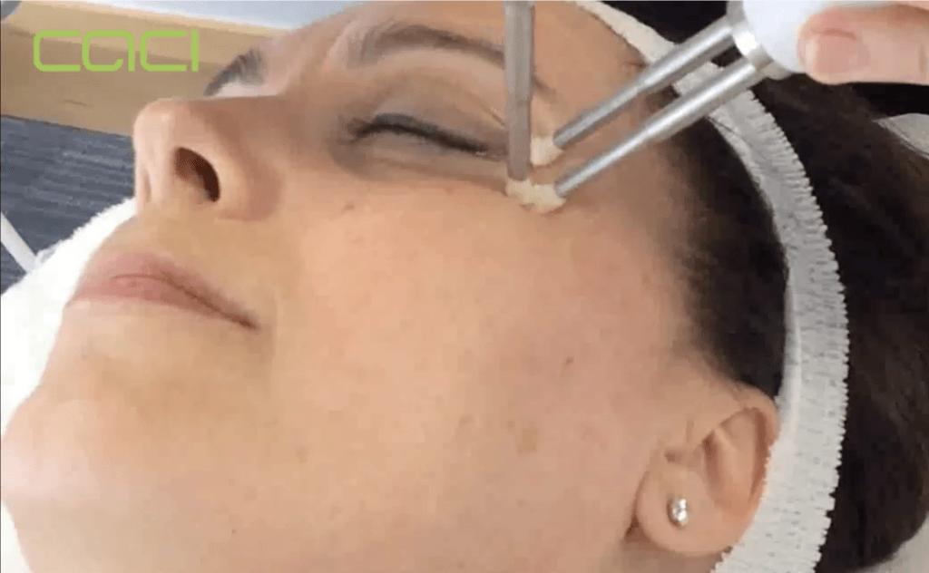 CACI eye revive step 1