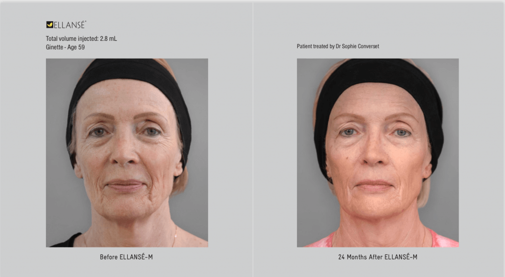 Before and after Ellanse treatment cheshire