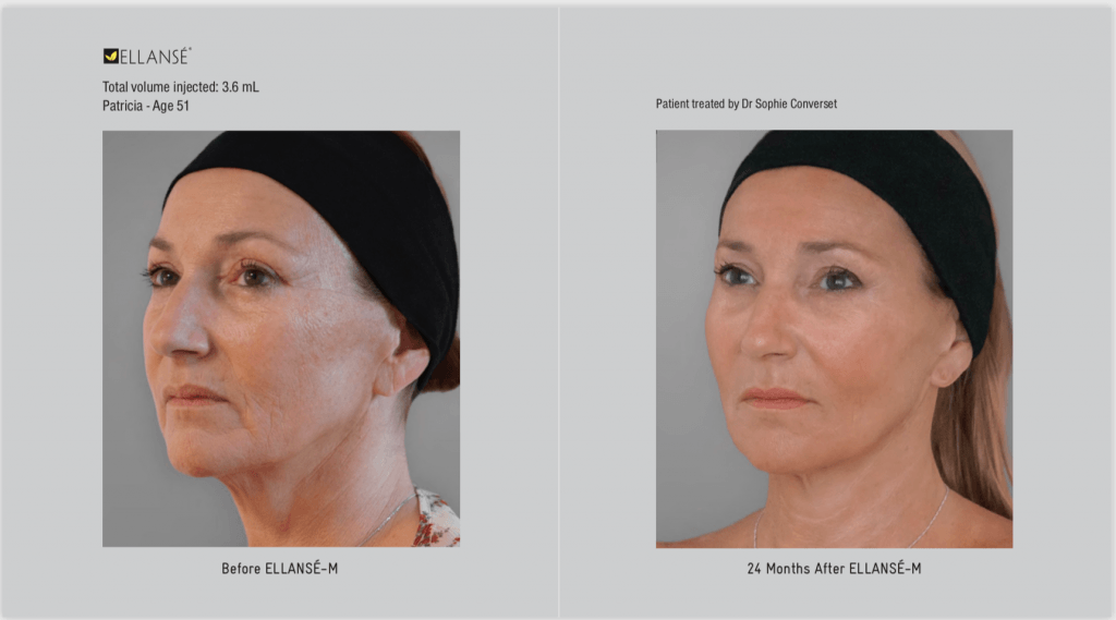 Ellanse Dermal filler at Cheshire Lasers, Middlewich