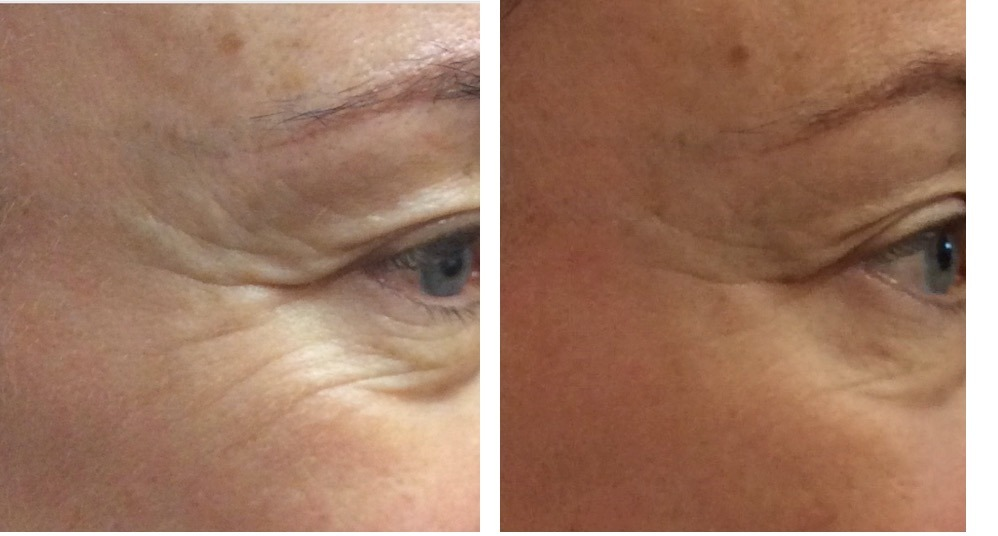 before and after Ultraformer eye treatment