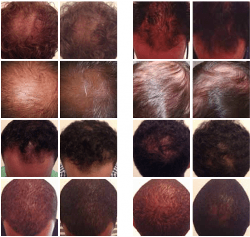 hrs mesotherapy hair loss treatment Cheshire