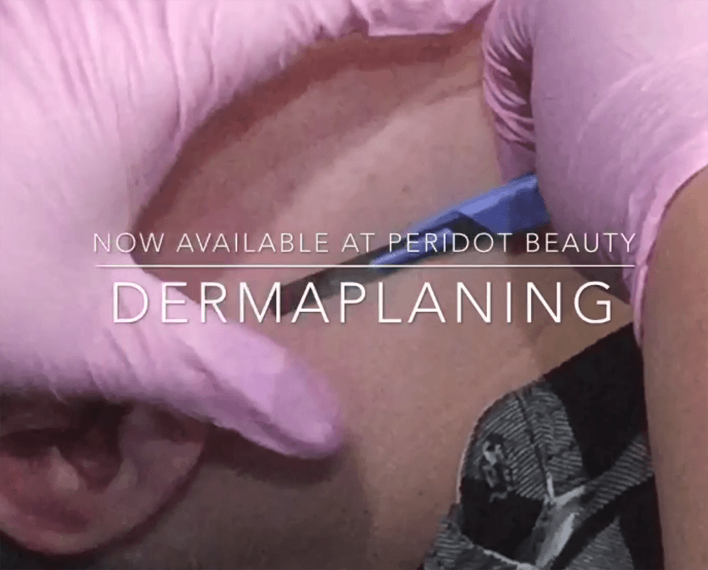 Dermaplaning treatment with Millie in Middlewich Cheshire
