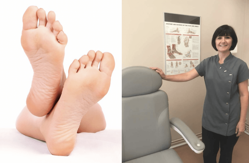 Samantha Hatton podiatrist Cheshire middlewich