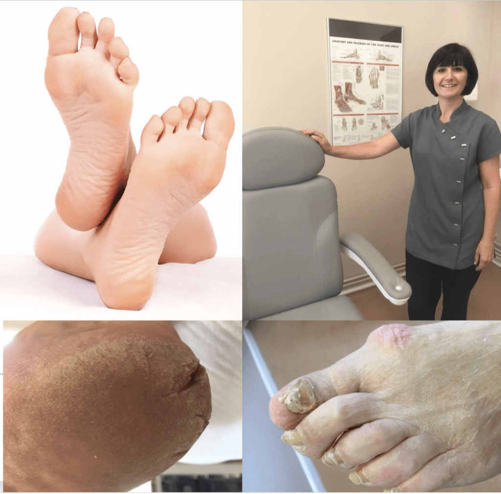 Samantha Hatton podiatry Middlewich Cheshire chiropody