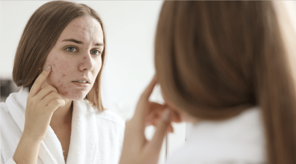 severe acne treatments Cheshire