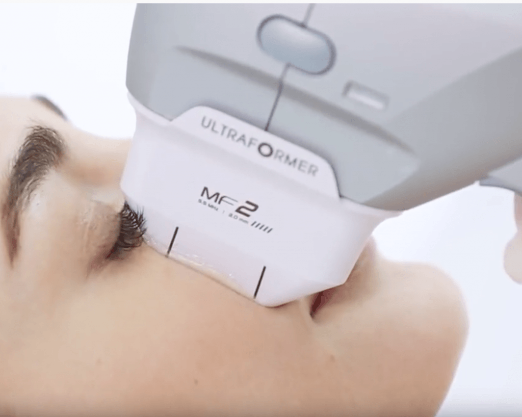 treatment for lines on the cheeks