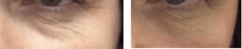 under eye wrinkle treatment radiofrequency