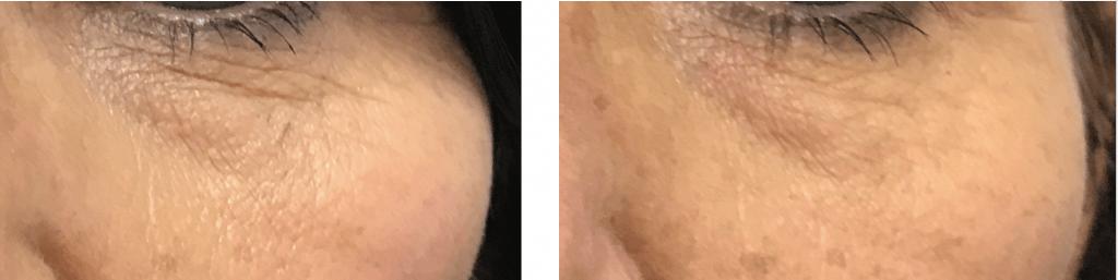 ultraformer mf2 under eye treatment