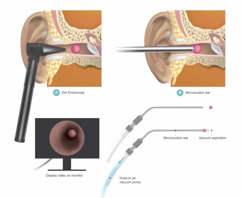 ear wax removal microsuction Middlewich Cheshire