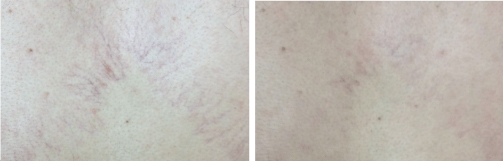 thread vein removal Cheshire