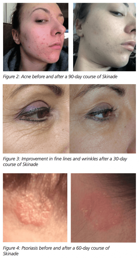Skinade before and after images cheshire