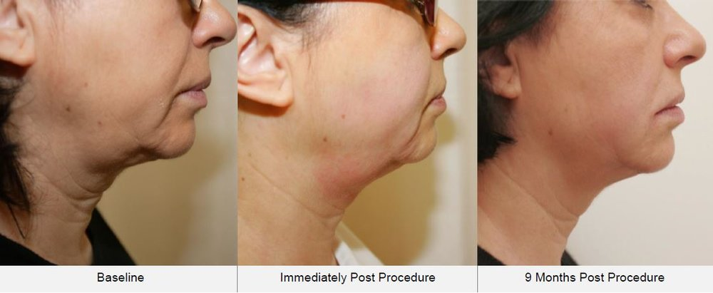 before and after ultraformer jowl treatment