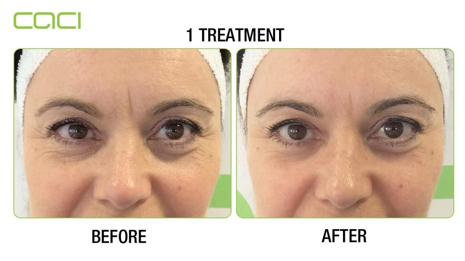 Before and after caci eye revive
