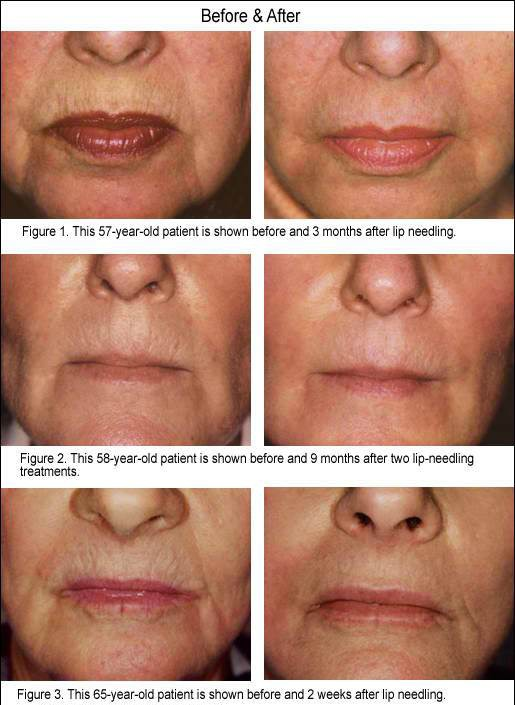 before and after Dermapen Cheshire