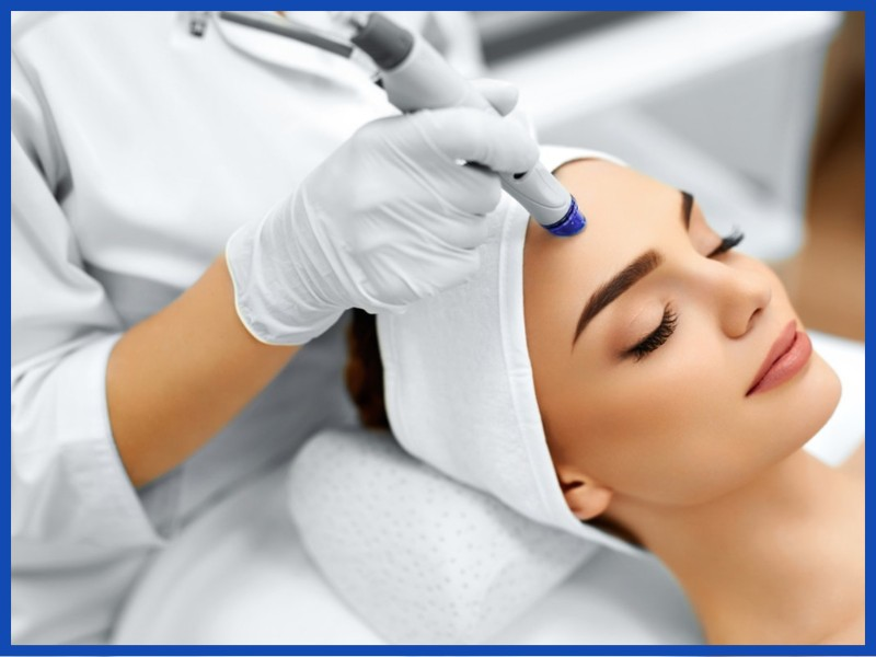 microdermabrasion Cheshire