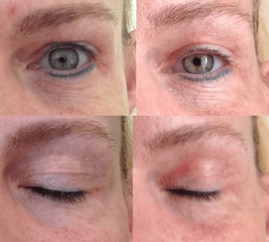 Jett Plasma skin treatments at Cheshire Lasers, Middlewich