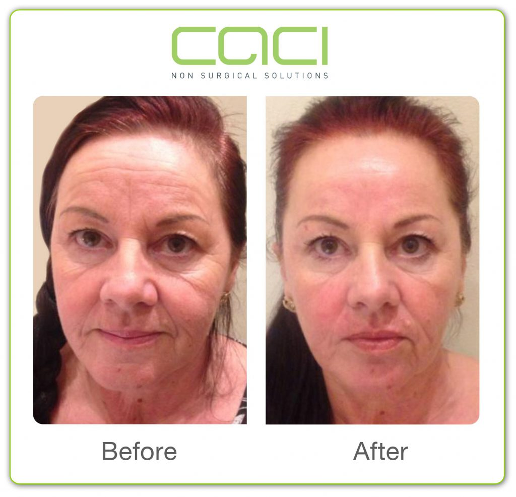 before and after CACI Non Surgical Facelift