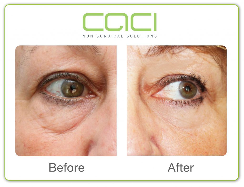 Before and after CACI Eye treatment