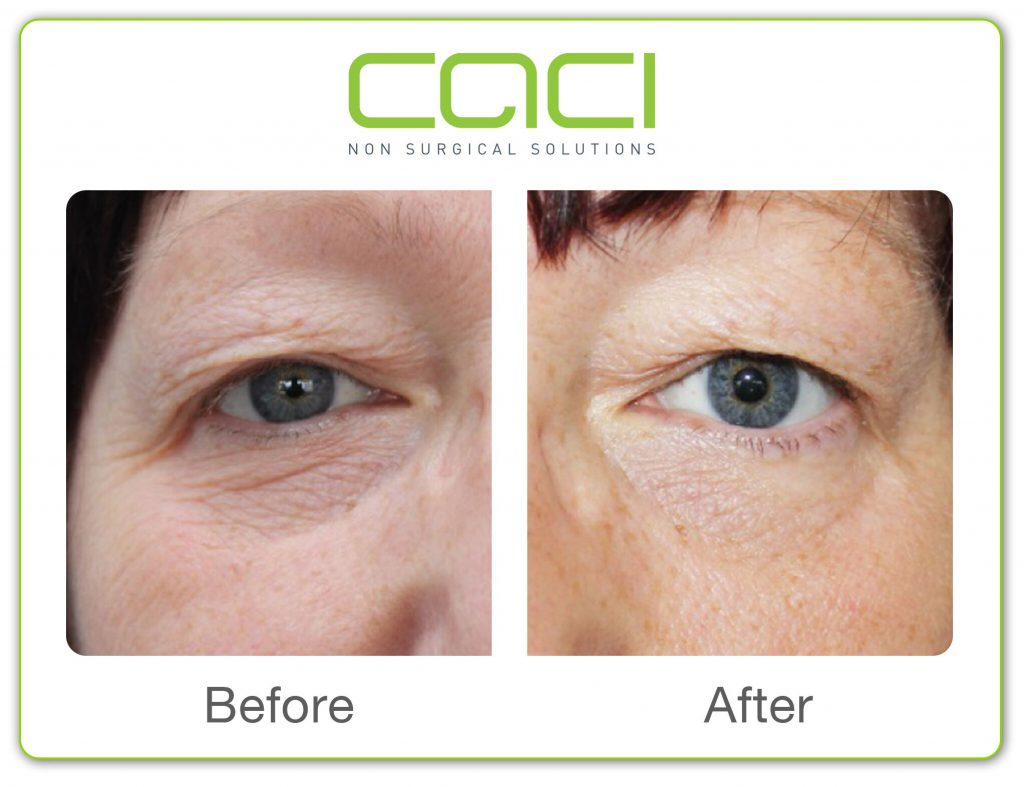 Before and after CACI Eye treatment middlewich Cheshire