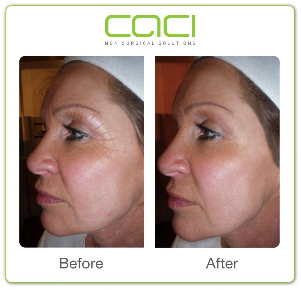 before and after CACI Non Surgical Facelift in Middlewich Cheshire