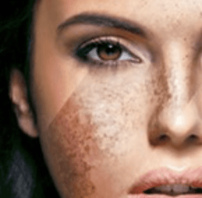 pigmentation image Cheshire treatment laser