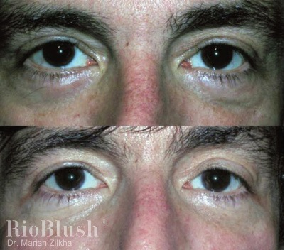 rioblush carboxytherapy cheshire