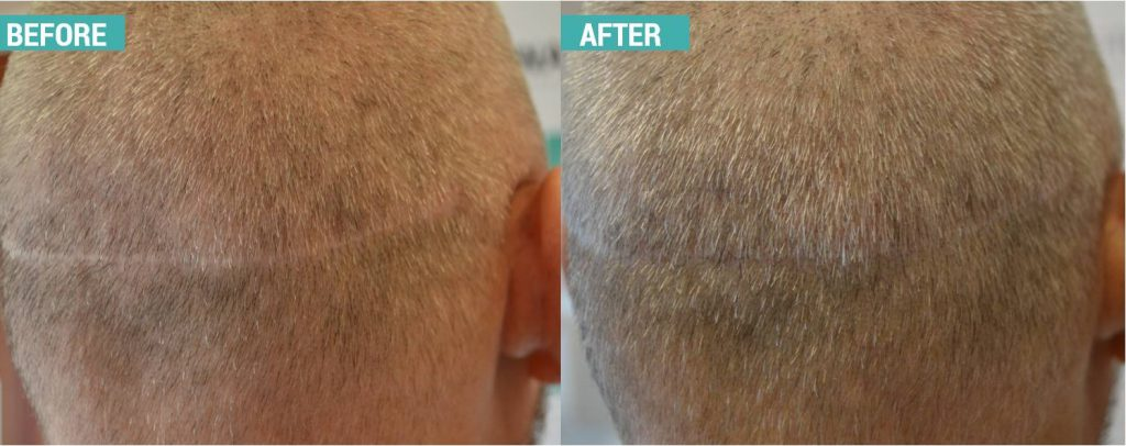 scalp micropigmentation cheshire post hair transplant