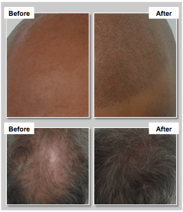 scalp micropigmentation cheshire