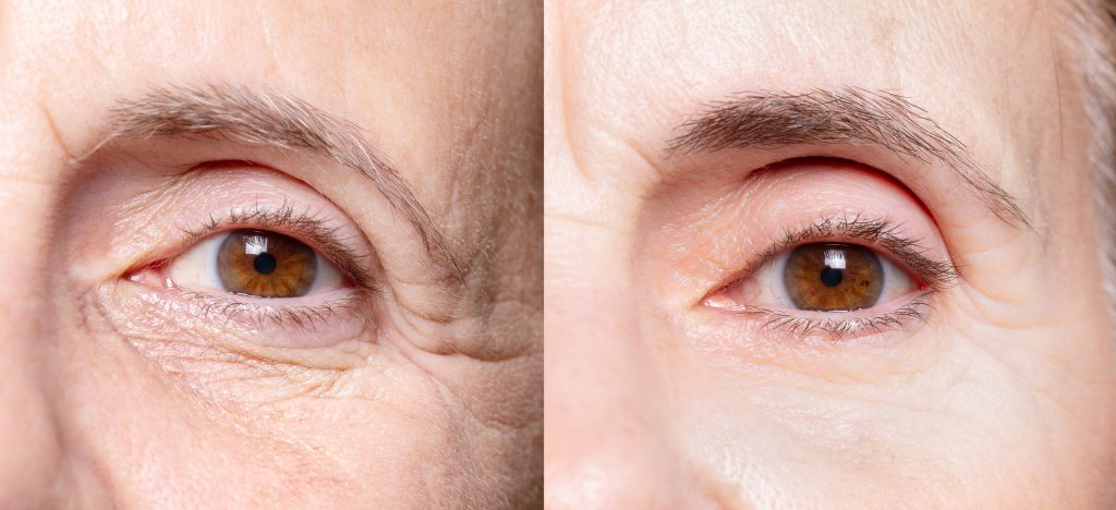 under eye wrinkle treatments cheshire