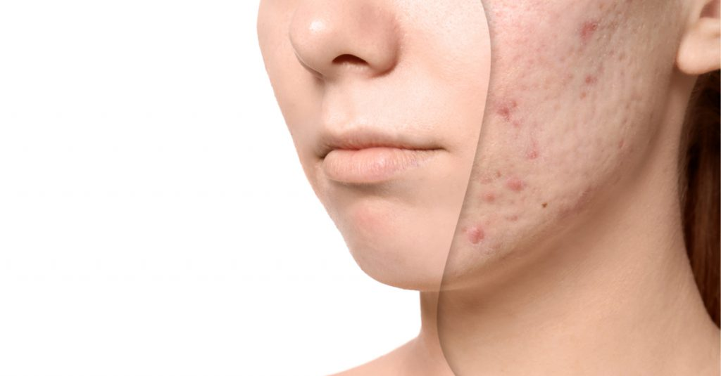 Acne treatments Cheshire