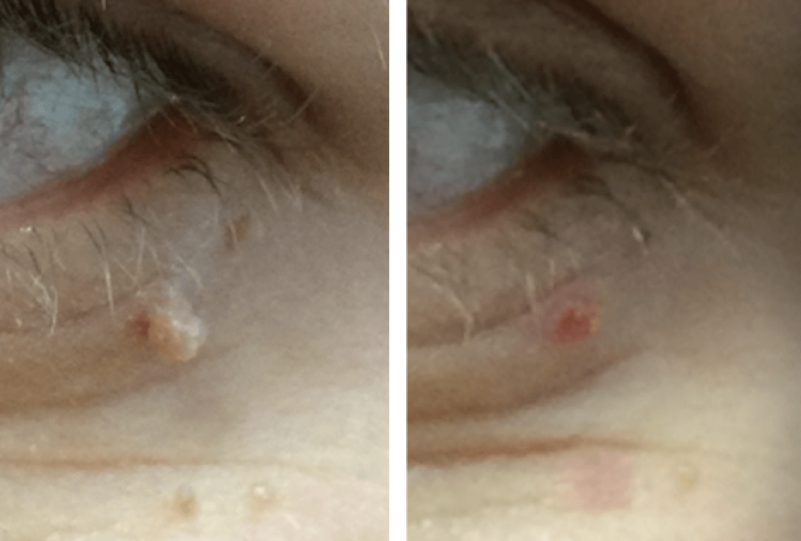 Skin Tag Removal Treatment In Middlewich Cheshire