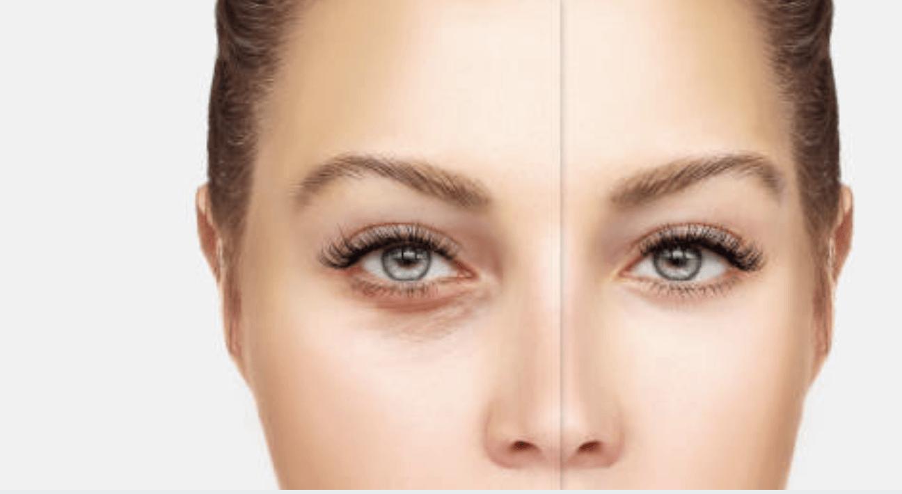 under eye wrinkle treatments cheshire