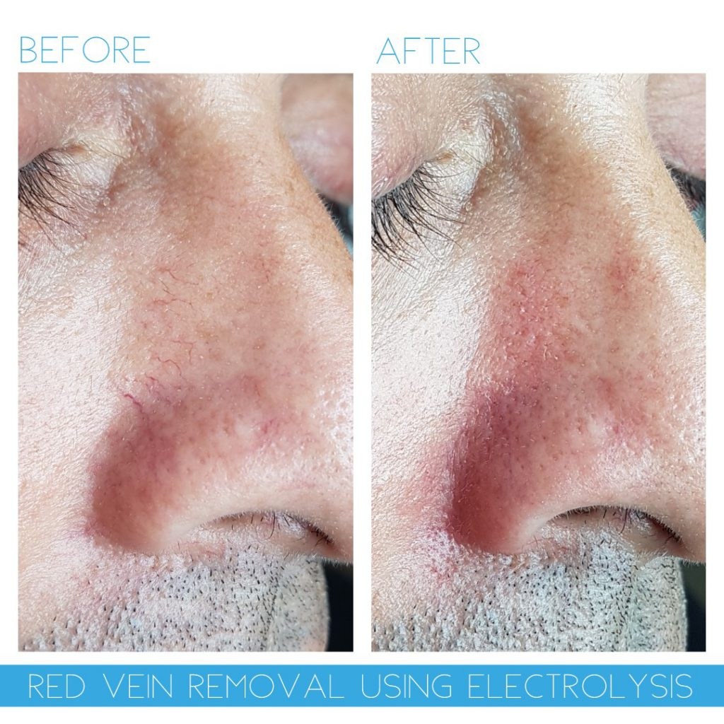 thread vein removal nose advanced electrolysis cheshire