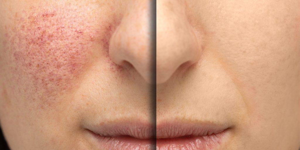 laser for veins on face