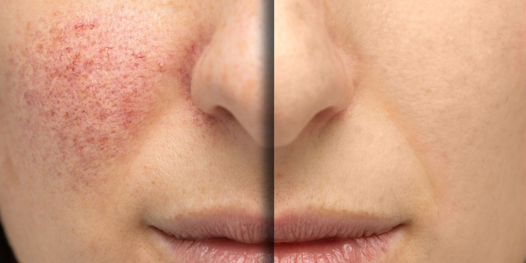 how to cover veins on face