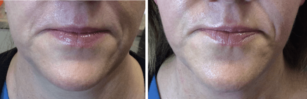 before after endymed jawline mini shaper treatment cheshire