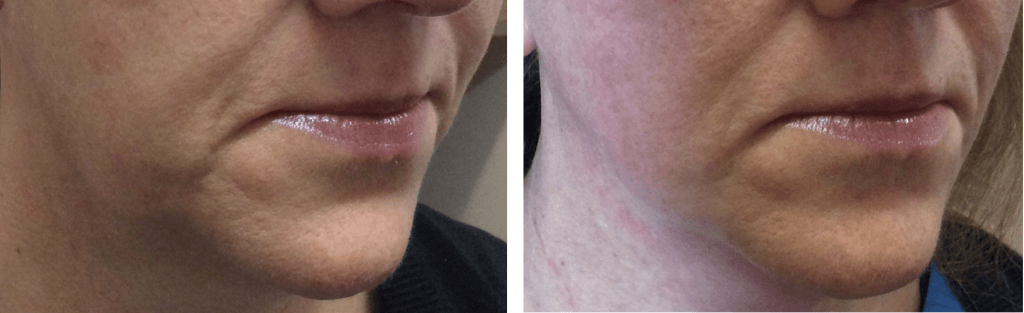 before and after endymed jawline mini shaper treatment cheshire