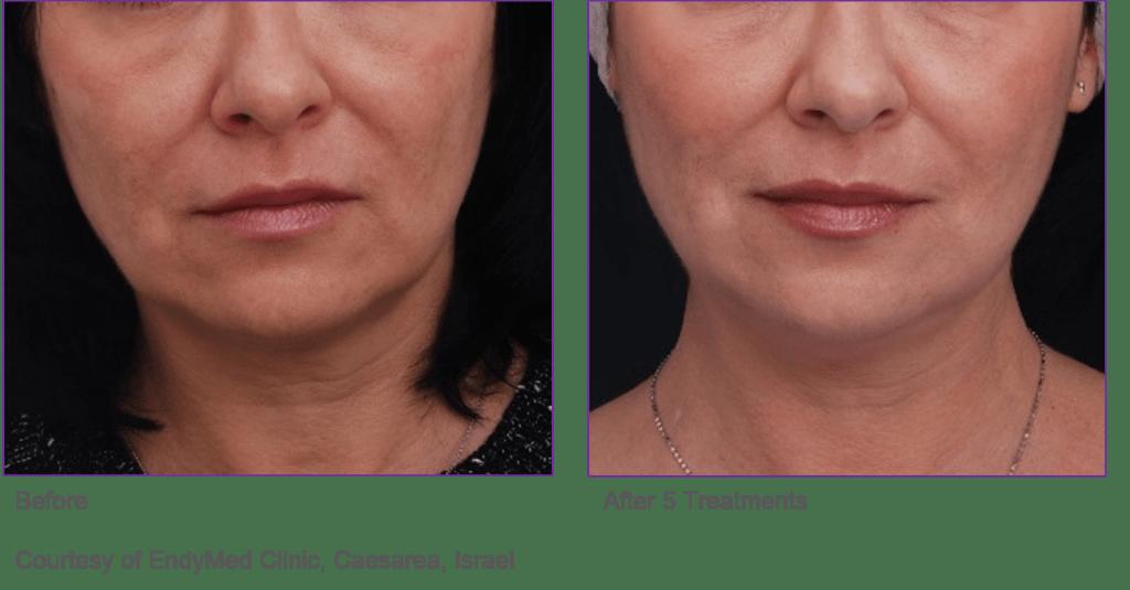 endymed jawline mini shaper treatment cheshire