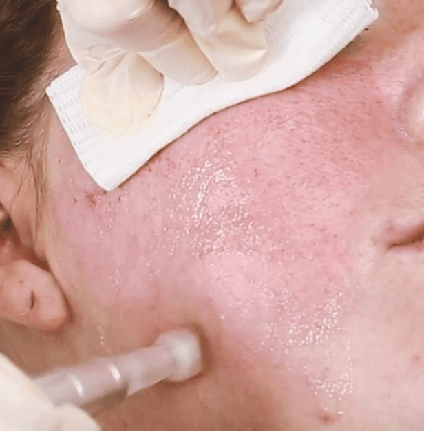 scar treatment cheshire