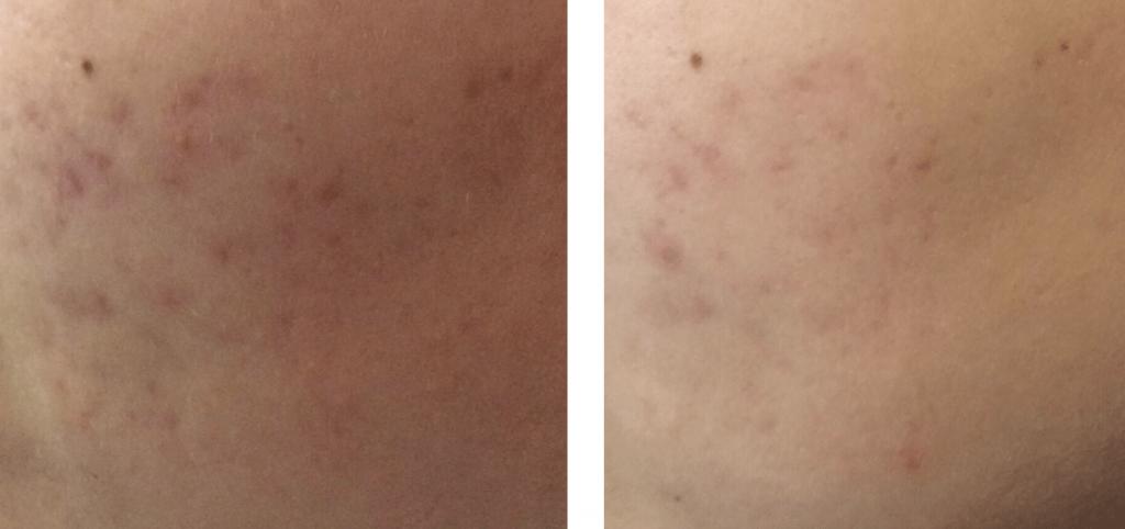 carboxytherapy acne scar treatment