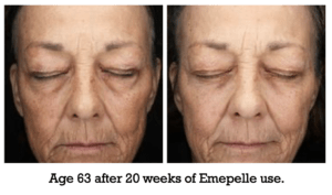 Age 63 after 20 weeks of Emepelle use.